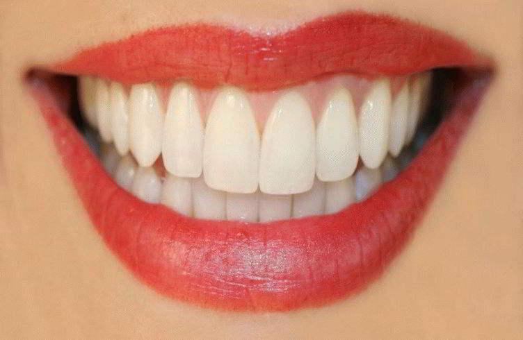к зуб чему снится с шатающийся сонник кровью