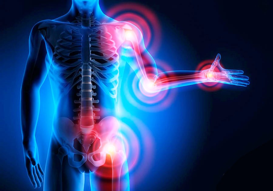 Аюрведе для суставов и артрита