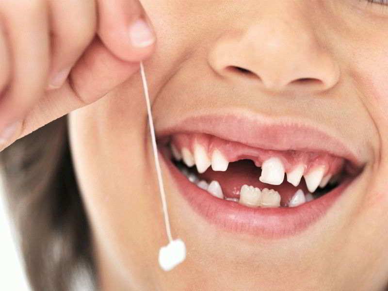 К чему снится, когда крошатся и выпадают зубы во сне?