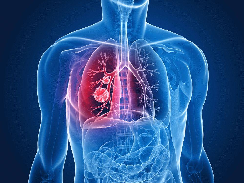 Болезни органов дыхания по психосоматике – причины и лечение