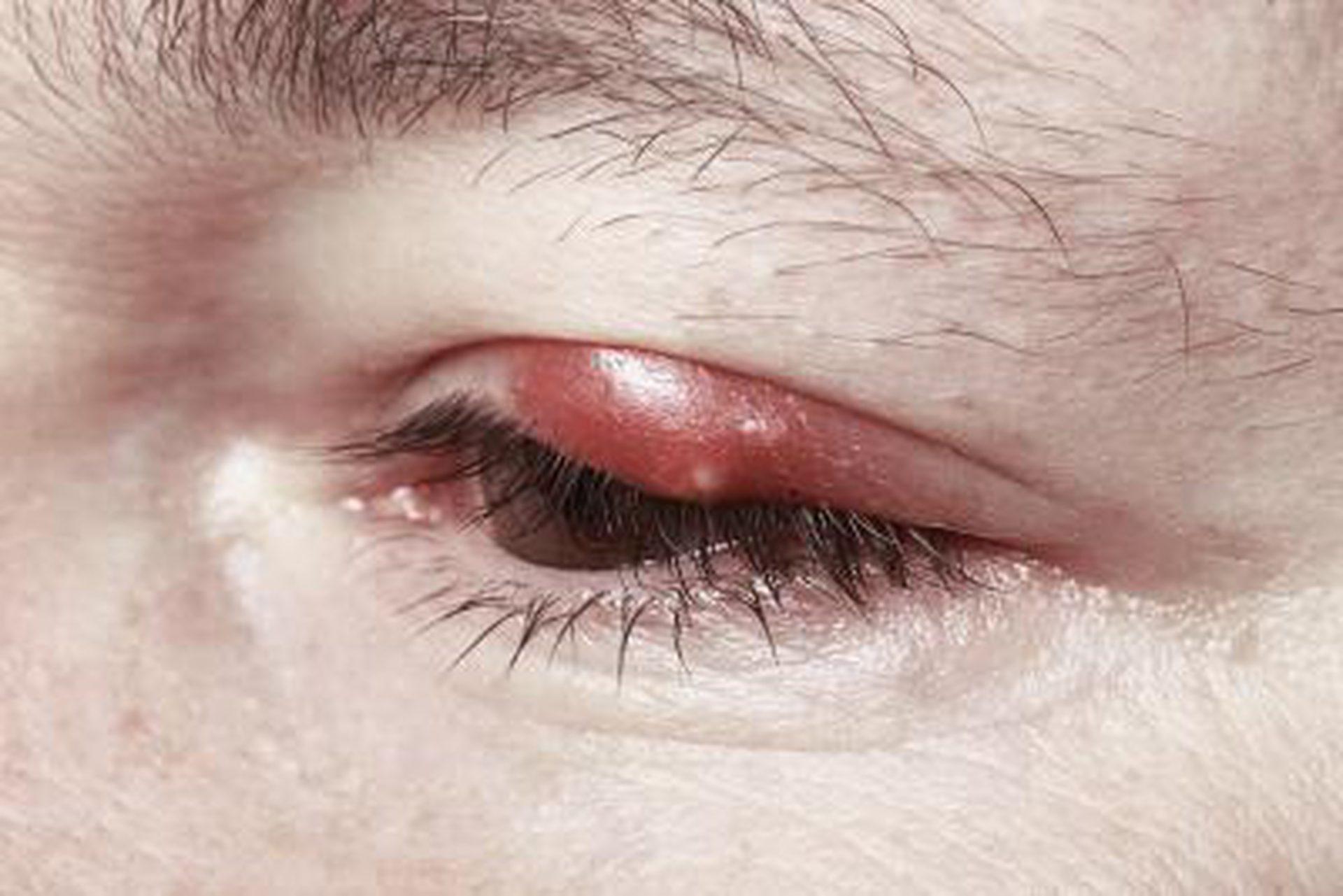 Заговоры от ячменя на глазу и его последствия