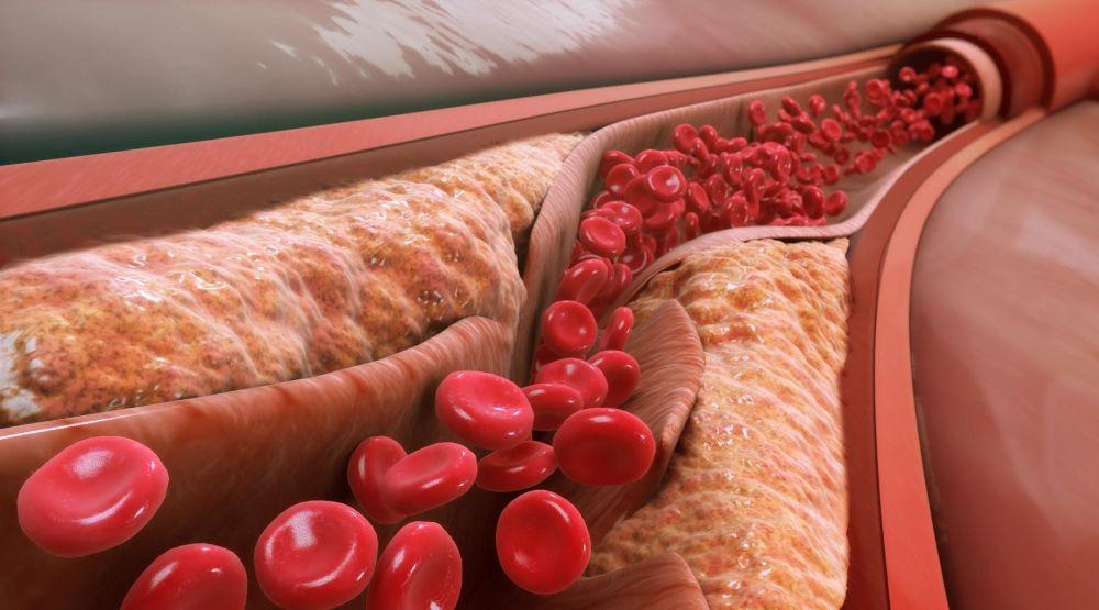 Психосоматика атеросклероза – причины возникновения, как лечить